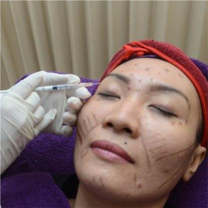 KOTAK 3D PHOTO TREATMENT